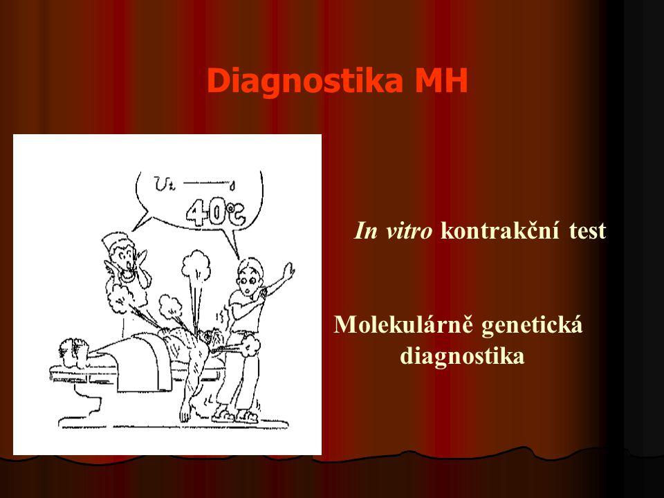 Diagnostika MH In vitro kontrakční test Molekulárně genetická diagnostika