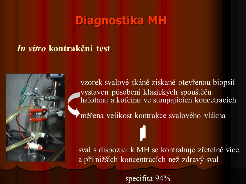 Diagnostika MH In vitro kontrakční test vzorek svalové tkáně získané otevřenou biopsií vystaven působení klasických spouštěčů halotanu a kofeinu ve stoupajících koncetracích měřena velikost kontrakce svalového vlákna sval s dispozicí k MH se kontrahuje zřetelně více a při nižších koncentracích než zdravý sval specifita 94%