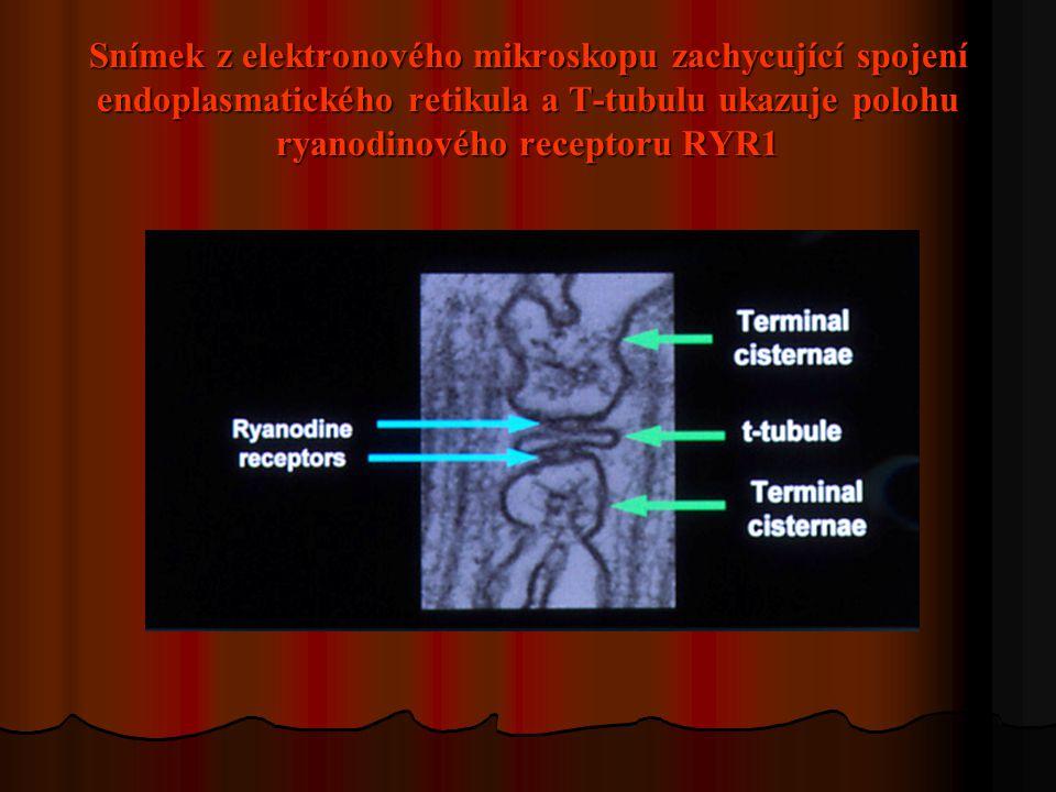 Snímek z elektronového mikroskopu zachycující spojení endoplasmatického retikula a T-tubulu ukazuje polohu ryanodinového receptoru RYR1