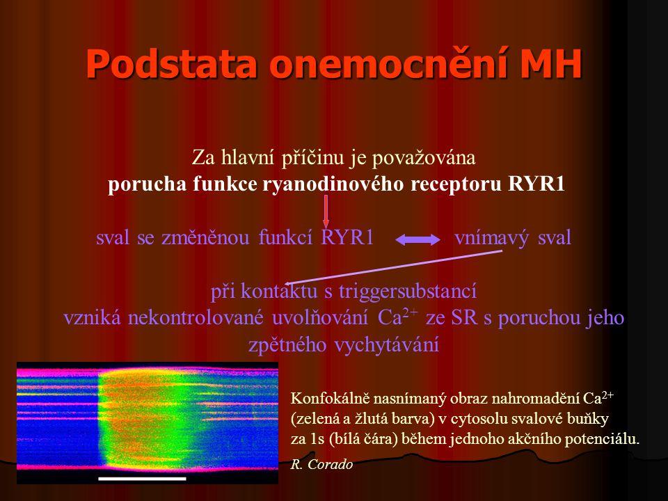 Podstata onemocnění MH Za hlavní příčinu je považována porucha funkce ryanodinového receptoru RYR1 sval se změněnou funkcí RYR1 vnímavý sval při kontaktu s triggersubstancí vzniká nekontrolované uvolňování Ca 2+ ze SR s poruchou jeho zpětného vychytávání Konfokálně nasnímaný obraz nahromadění Ca 2+ (zelená a žlutá barva) v cytosolu svalové buňky za 1s (bílá čára) během jednoho akčního potenciálu.