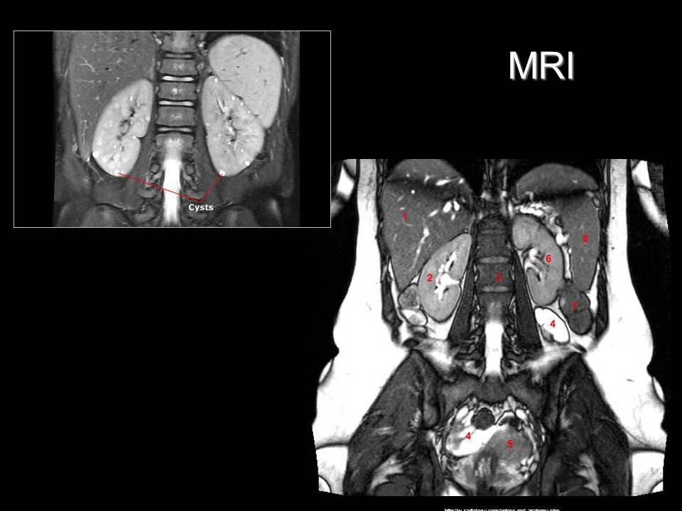 MRI http://w-radiology.com/entero-mri-anatomy.php