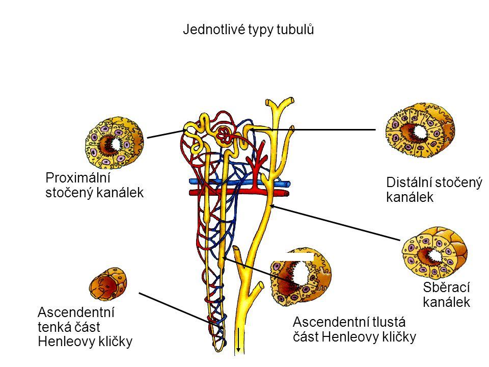 Renovaskulární nemoci Nefroskleróza – forma arteriolosklerózy vyvolaná hypertenzí v glomerulech