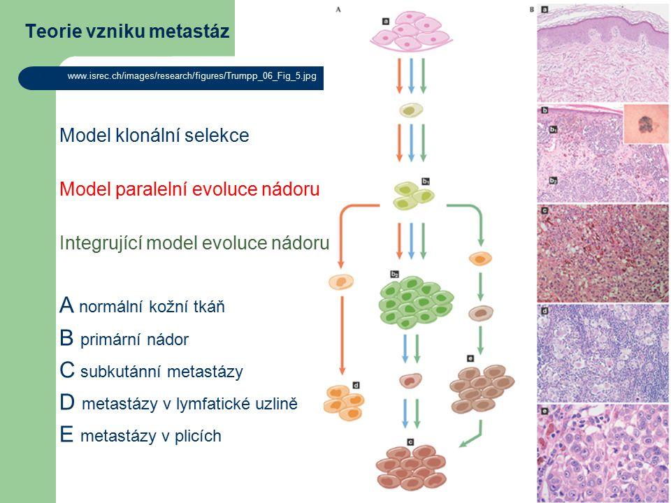 Teorie vzniku metastáz http://www.isrec.ch/images/research/figures/Trumpp_06_Fig_5.jpg Model klonální selekce Model paralelní evoluce nádoru Integrující model evoluce nádoru A normální kožní tkáň B primární nádor C subkutánní metastázy D metastázy v lymfatické uzlině E metastázy v plicích