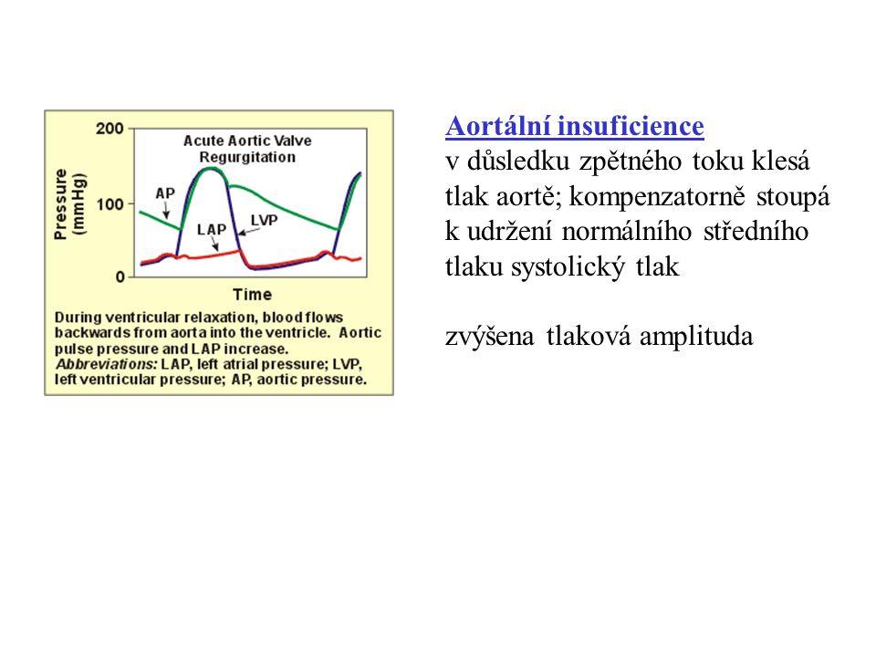 Aortální insuficience v důsledku zpětného toku klesá tlak aortě; kompenzatorně stoupá k udržení normálního středního tlaku systolický tlak zvýšena tla