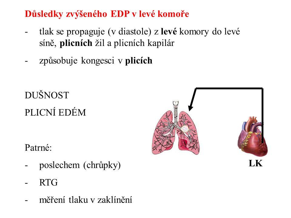 Důsledky zvýšeného EDP v levé komoře -tlak se propaguje (v diastole) z levé komory do levé síně, plicních žil a plicních kapilár -způsobuje kongesci v
