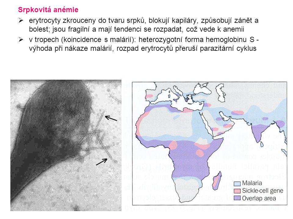 Srpkovitá anémie  erytrocyty zkrouceny do tvaru srpků, blokují kapiláry, způsobují zánět a bolest; jsou fragilní a mají tendenci se rozpadat, což ved
