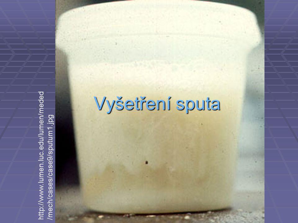 Vyšetření sputa http://www.lumen.luc.edu/lumen/meded /mech/cases/case9/sputum1.jpg