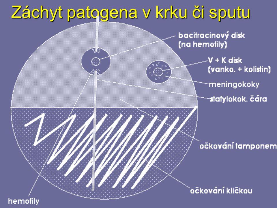 Záchyt patogena v krku či sputu