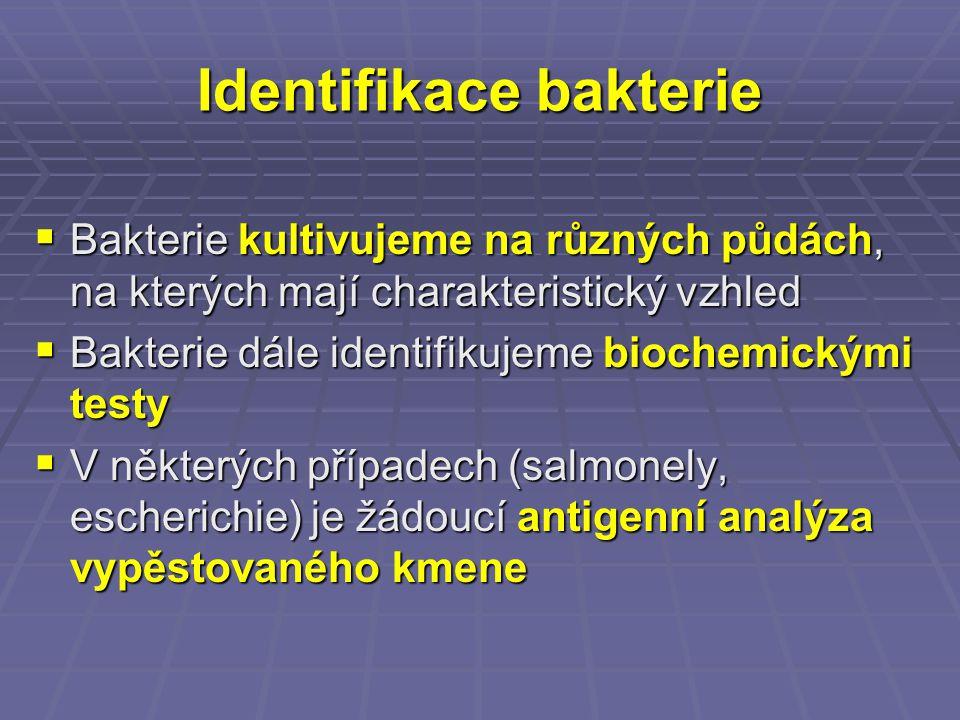 Identifikace bakterie  Bakterie kultivujeme na různých půdách, na kterých mají charakteristický vzhled  Bakterie dále identifikujeme biochemickými t
