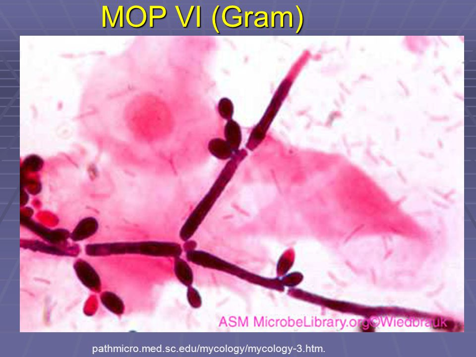 MOP VI (Gram) pathmicro.med.sc.edu/mycology/mycology-3.htm.