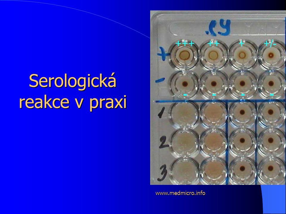 Serologická reakce v praxi +++ ++ + +/- - - - - www.medmicro.info