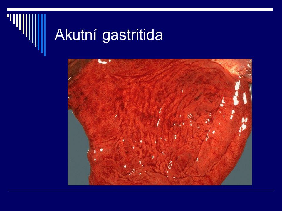 Akutní gastritida