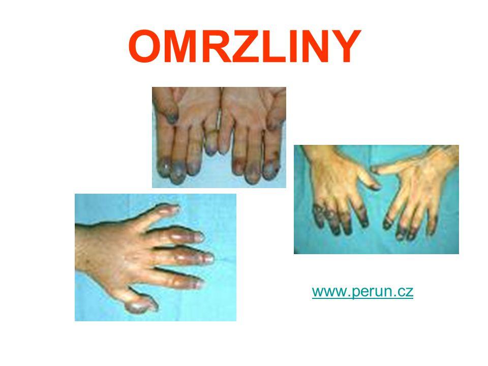 OMRZLINY www.perun.cz