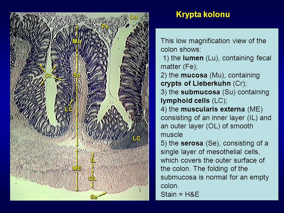 Viabilita Obarvení buněk eosinem Test integrity plazmatické membrány (obarví se mrtvé buňky s porušenou integritou plazmatické membrány, živé zůstanou beze změn) eosin