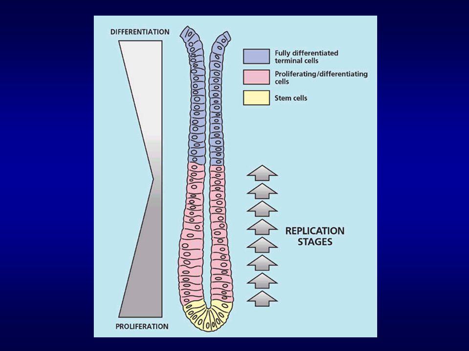 Rakovina tlustého střeva Nerovnováha mezi buněčnou proliferací, diferenciací a apoptózou – porušení homeostázy tkáně – podmínky pro rozvoj nádorového onemocnění - kolorektální karcinom vyvíjí se pomalu – nejprve benigní polypy – pak akumulace mutací (díky vysoké míře proliferace) a maligní zvrat počáteční stádia – dobře léčitelná (chirurgie, v raných fázích jedno z nejlépe léčitelných nádorových onemocnění) polovina nádorů CRC však zjištěna až v pokročilém stádiu (nedostatečný screening) vysoká incidence CRC v ČR – přední místo ve statistikách, neustálý alarmující nárůst možnost významně ovlivnit vývoj onemocnění složením výživy obrovský význam prevence!