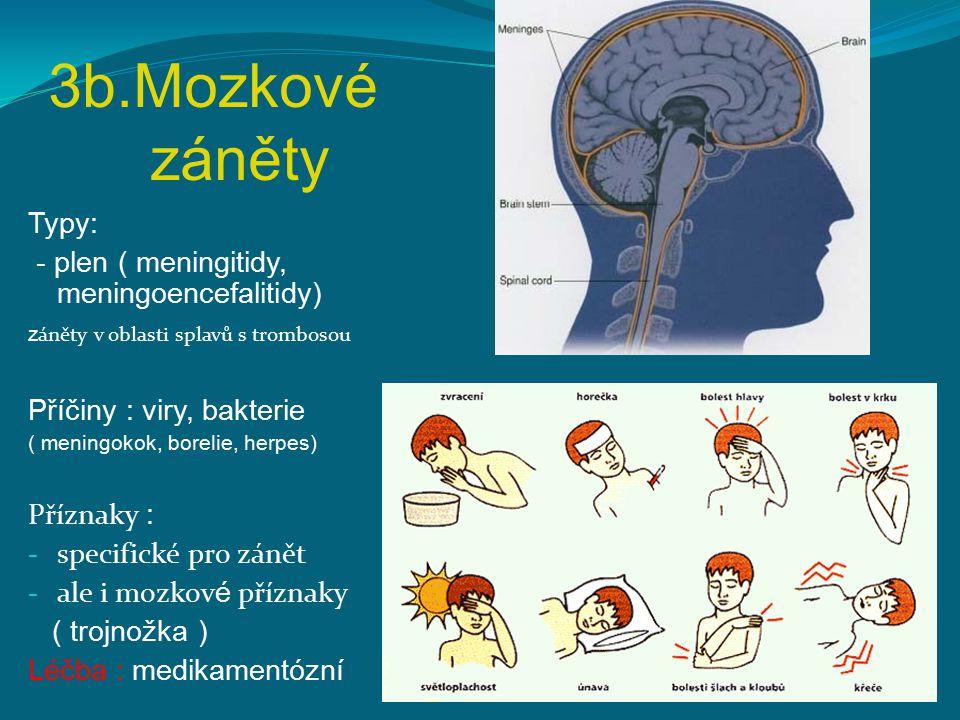 3b.Mozkové záněty Typy: - plen ( meningitidy, meningoencefalitidy) z áněty v oblasti splavů s trombosou Příčiny : viry, bakterie ( meningokok, borelie