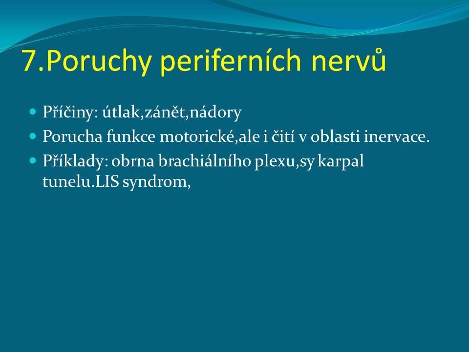 7.Poruchy periferních nervů Příčiny: útlak,zánět,nádory Porucha funkce motorické,ale i čití v oblasti inervace. Příklady: obrna brachiálního plexu,sy
