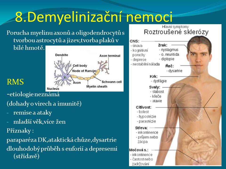 8.Demyelinizační nemoci Porucha myelinu axonů a oligodendrocytů s tvorbou astrocytů a jizev,tvorba plaků v bílé hmotě. RMS - etiologie neznámá (dohady