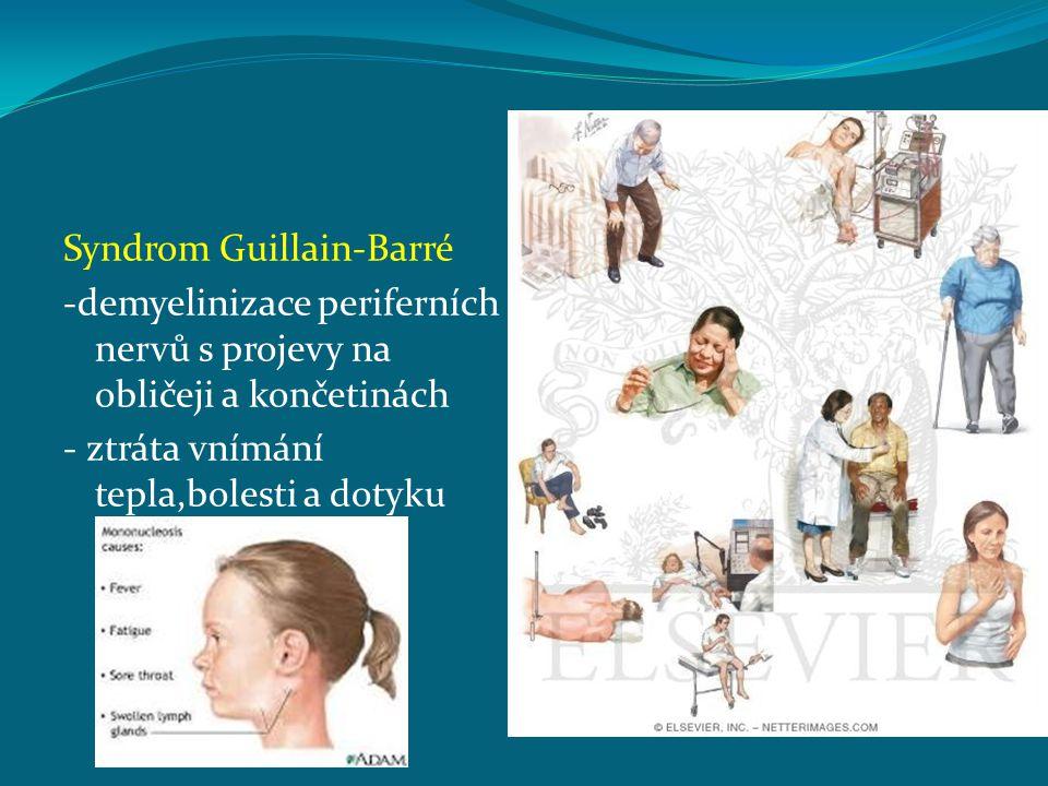 Syndrom Guillain-Barré -demyelinizace periferních nervů s projevy na obličeji a končetinách - ztráta vnímání tepla,bolesti a dotyku