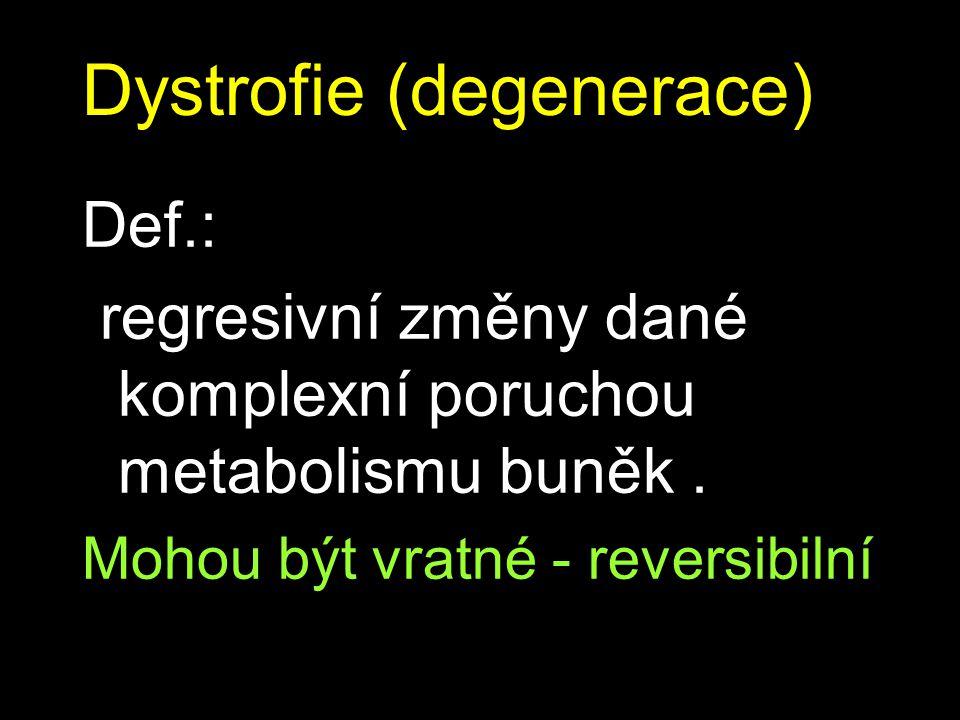 Dystrofie (degenerace) Def.: regresivní změny dané komplexní poruchou metabolismu buněk.
