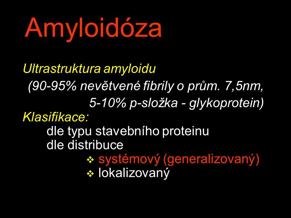 Amyloidóza Ultrastruktura amyloidu (90-95% nevětvené fibrily o prům.