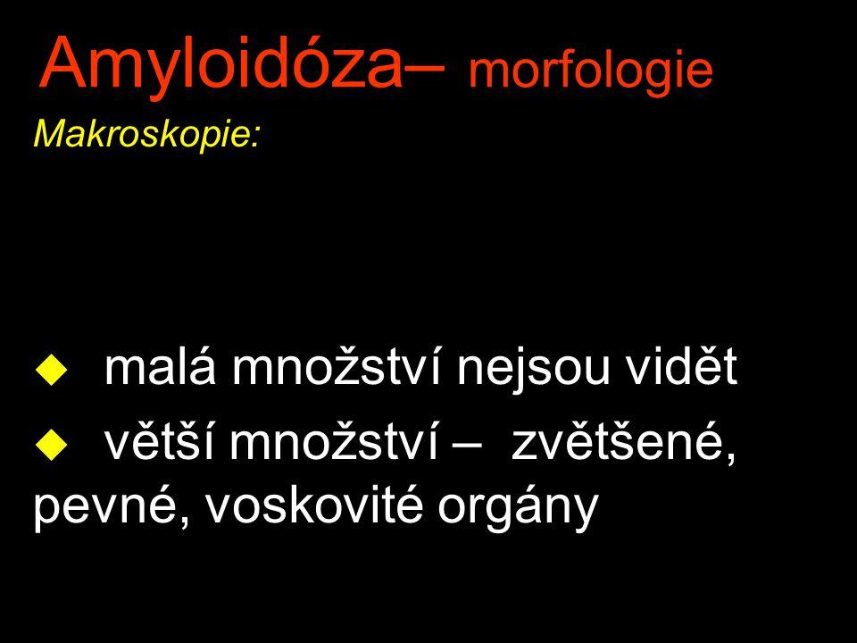 Amyloidóza– morfologie Makroskopie: u malá množství nejsou vidět u větší množství – zvětšené, pevné, voskovité orgány