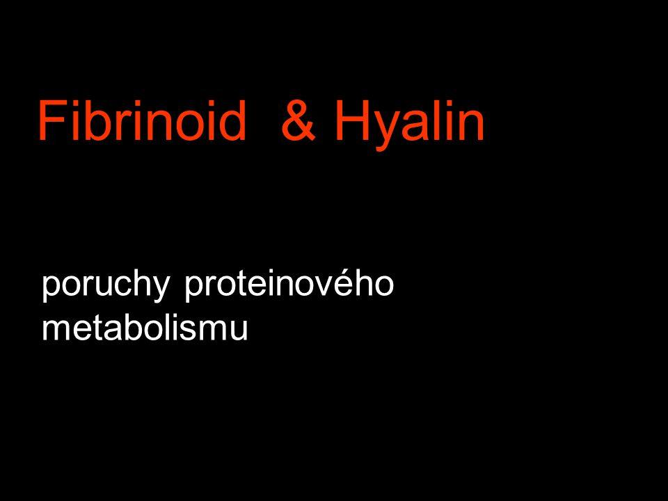 Fibrinoid & Hyalin poruchy proteinového metabolismu