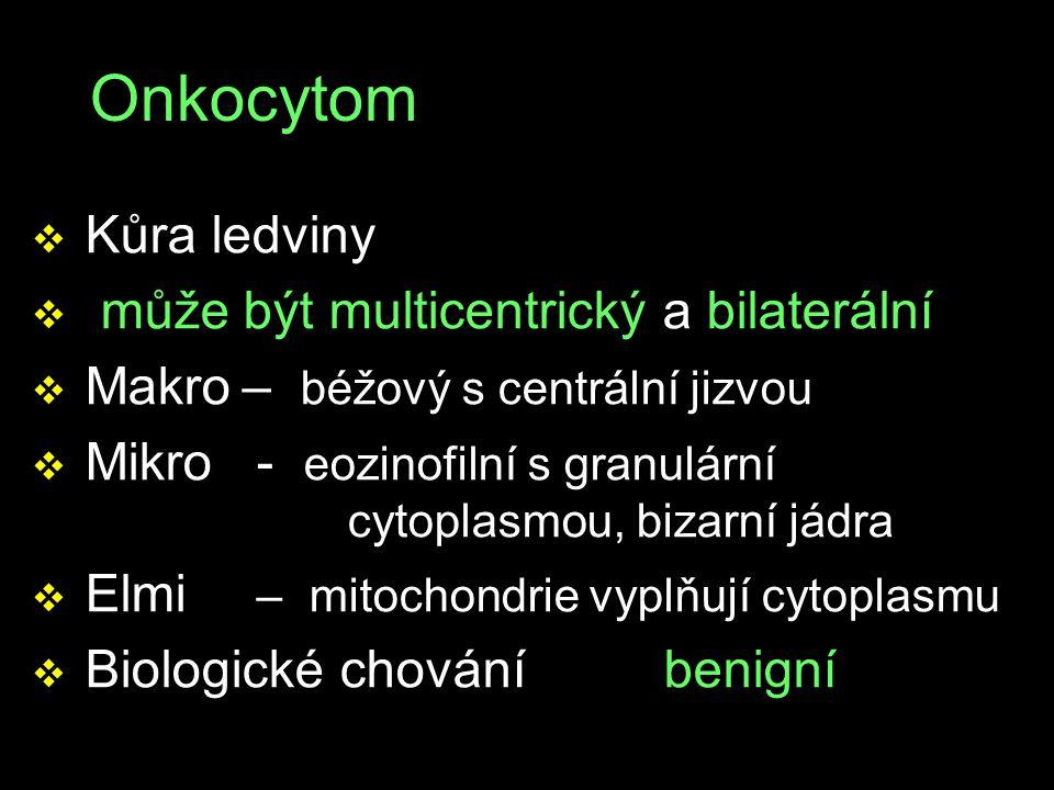 Onkocytom v Kůra ledviny v může být multicentrický a bilaterální v Makro– béžový s centrální jizvou v Mikro - eozinofilní s granulární cytoplasmou, bi