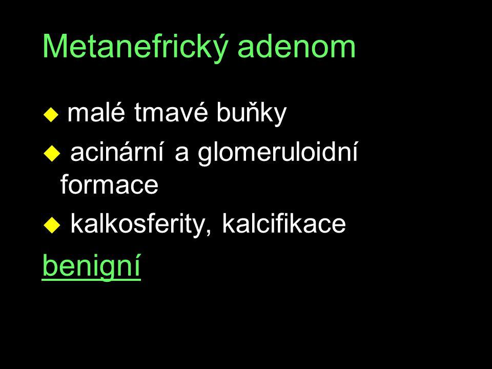 Metanefrický adenom u malé tmavé buňky u acinární a glomeruloidní formace u kalkosferity, kalcifikace benigní
