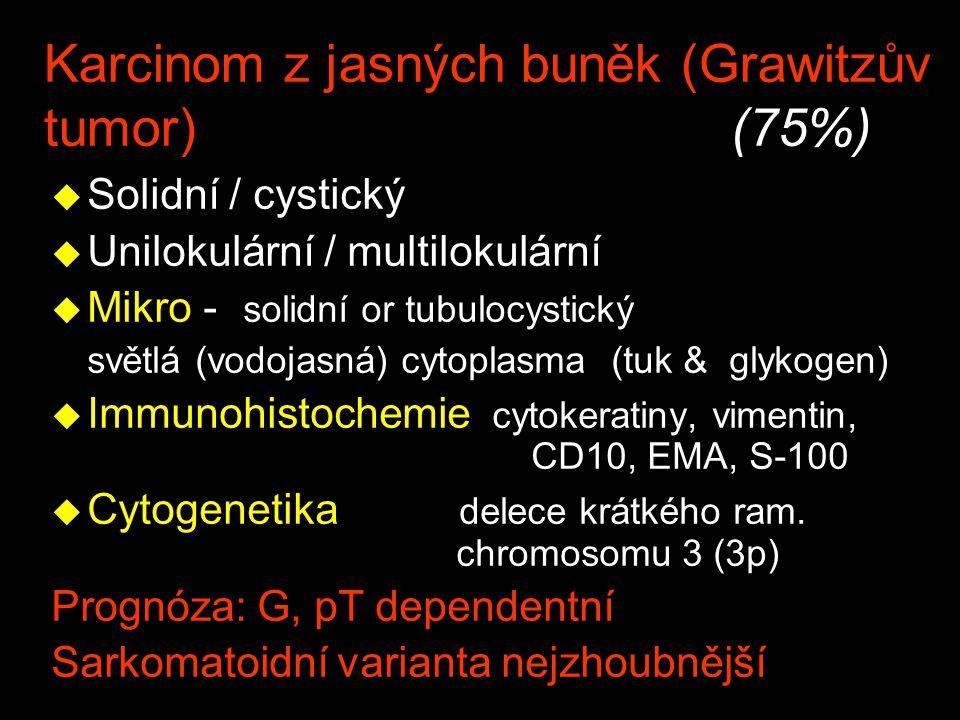 Karcinom z jasných buněk (Grawitzův tumor) (75%) u Solidní / cystický u Unilokulární / multilokulární u Mikro - solidní or tubulocystický světlá (vodo