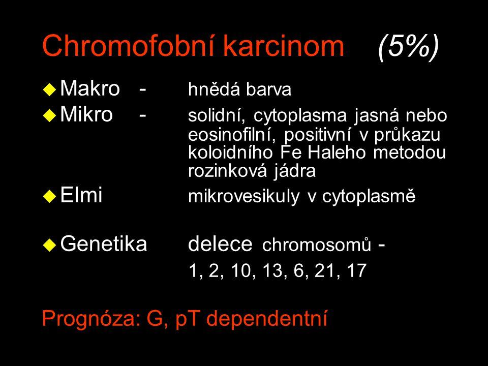 Chromofobní karcinom (5%) u Makro- hnědá barva u Mikro- solidní, cytoplasma jasná nebo eosinofilní, positivní v průkazu koloidního Fe Haleho metodou r