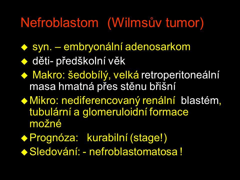 Nefroblastom (Wilmsův tumor) u syn. – embryonální adenosarkom u děti- předškolní věk u Makro: šedobílý, velká retroperitoneální masa hmatná přes stěnu