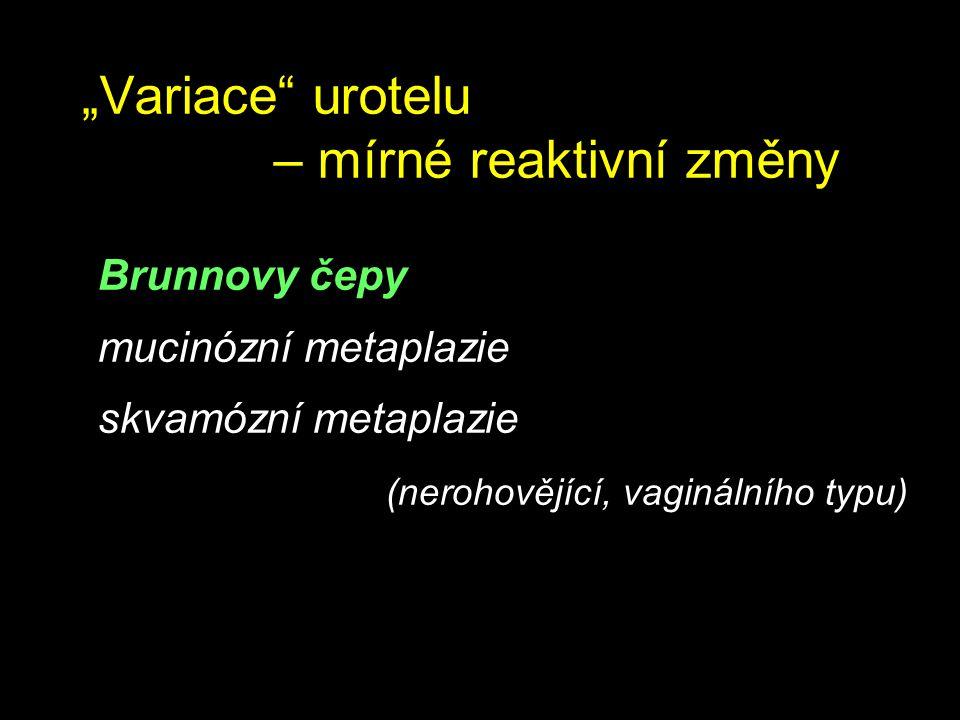 """""""Variace"""" urotelu – mírné reaktivní změny Brunnovy čepy mucinózní metaplazie skvamózní metaplazie (nerohovějící, vaginálního typu)"""