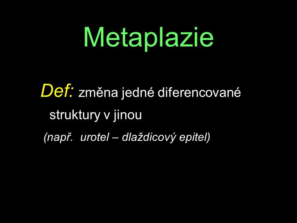 Metaplazie Def: změna jedné diferencované struktury v jinou (např. urotel – dlaždicový epitel)