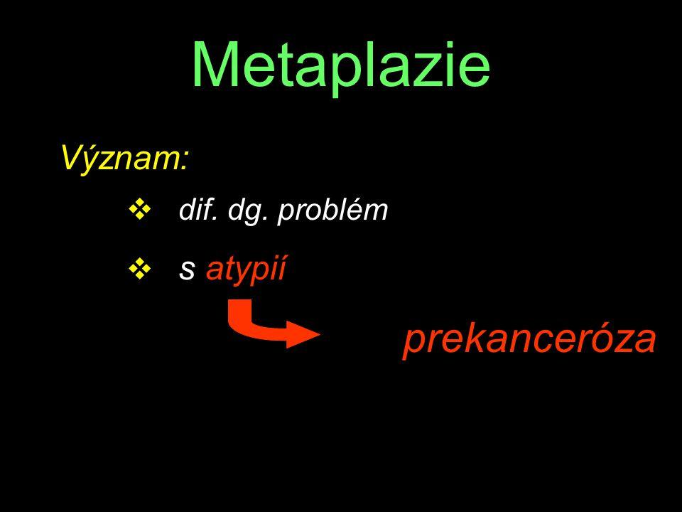 Metaplazie Význam: v dif. dg. problém v s atypií prekanceróza