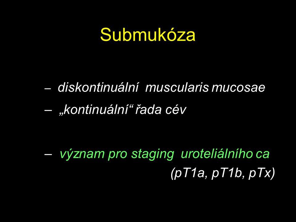 """Submukóza – diskontinuální muscularis mucosae – """"kontinuální"""" řada cév – význam pro staging uroteliálního ca (pT1a, pT1b, pTx)"""