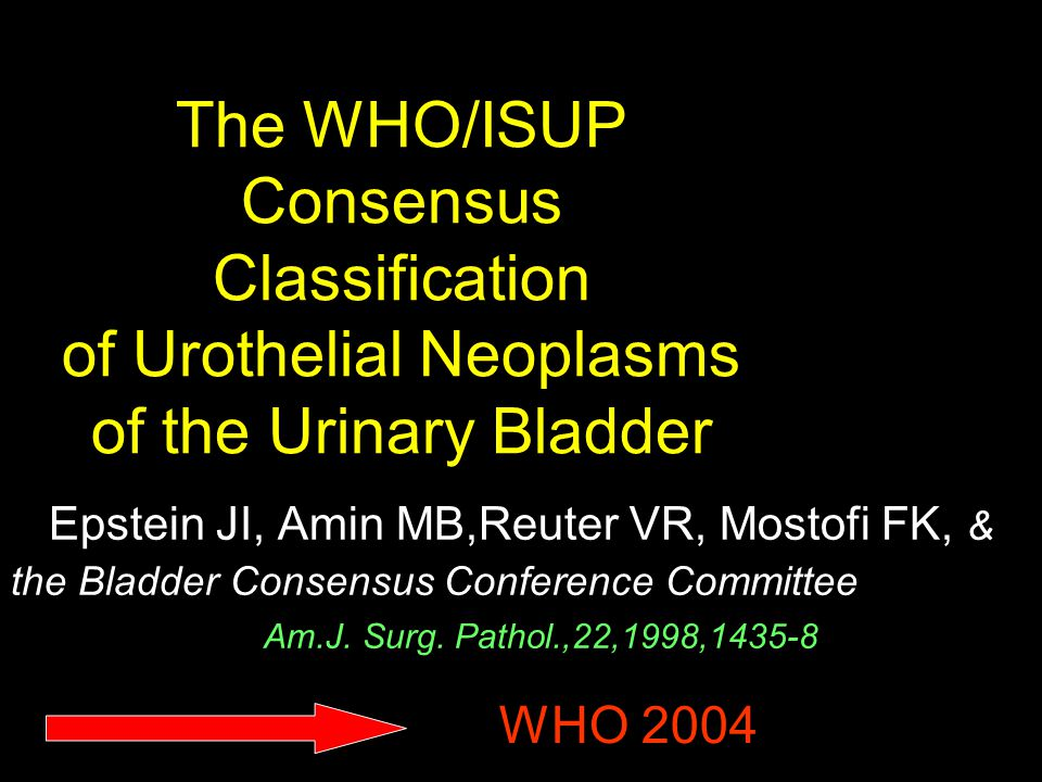 The WHO/ISUP Consensus Classification of Urothelial Neoplasms of the Urinary Bladder Epstein JI, Amin MB,Reuter VR, Mostofi FK, & the Bladder Consensu