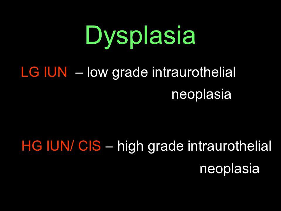 Dysplasia LG IUN – low grade intraurothelial neoplasia HG IUN/ CIS – high grade intraurothelial neoplasia