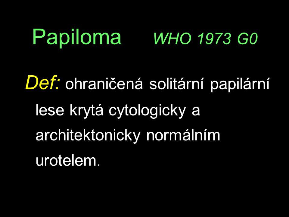 Papiloma WHO 1973 G0 Def: ohraničená solitární papilární lese krytá cytologicky a architektonicky normálním urotelem.