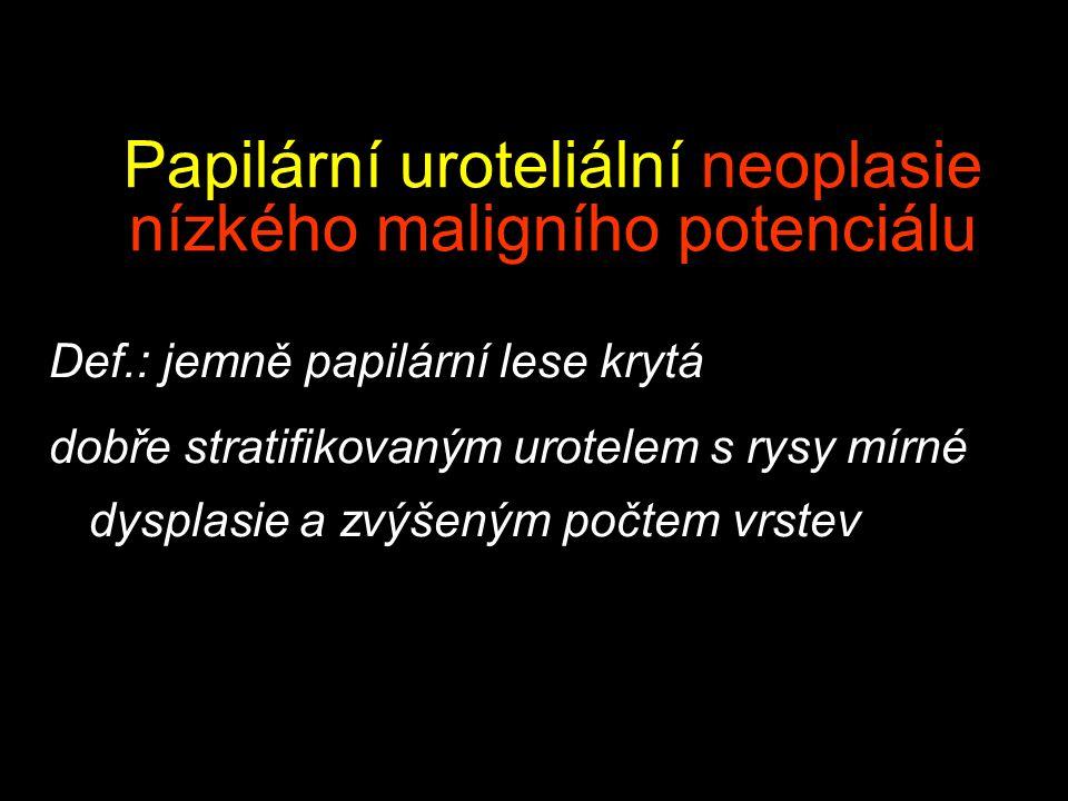 Papilární uroteliální neoplasie nízkého maligního potenciálu Def.: jemně papilární lese krytá dobře stratifikovaným urotelem s rysy mírné dysplasie a