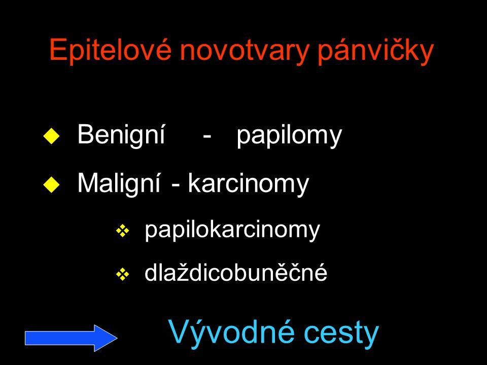 Epitelové novotvary pánvičky u Benigní -papilomy u Maligní -karcinomy v papilokarcinomy v dlaždicobuněčné Vývodné cesty