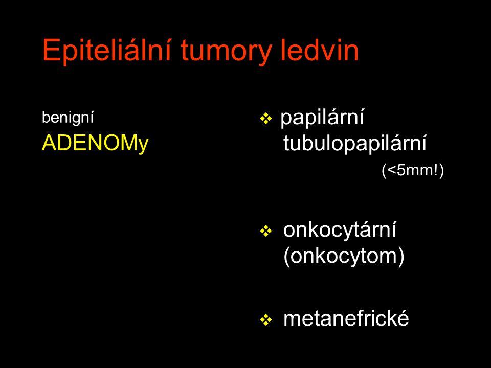 Epiteliální tumory ledvin benigní ADENOMy v papilární tubulopapilární (<5mm!) v onkocytární (onkocytom) v metanefrické