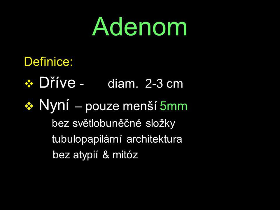 Adenom Definice: v Dříve -diam. 2-3 cm v Nyní – pouze menší 5mm bez světlobuněčné složky tubulopapilární architektura bez atypií & mitóz