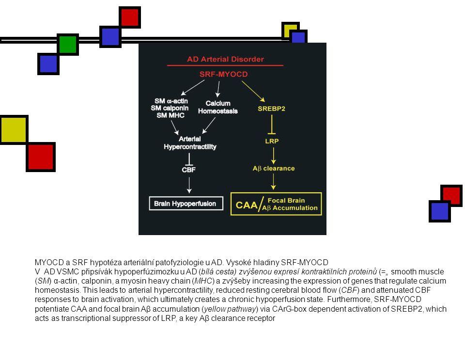 MYOCD a SRF hypotéza arteriální patofyziologie u AD. Vysoké hladiny SRF-MYOCD V AD VSMC připsívák hypoperfúzimozku u AD (bílá cesta) zvýšenou expresí
