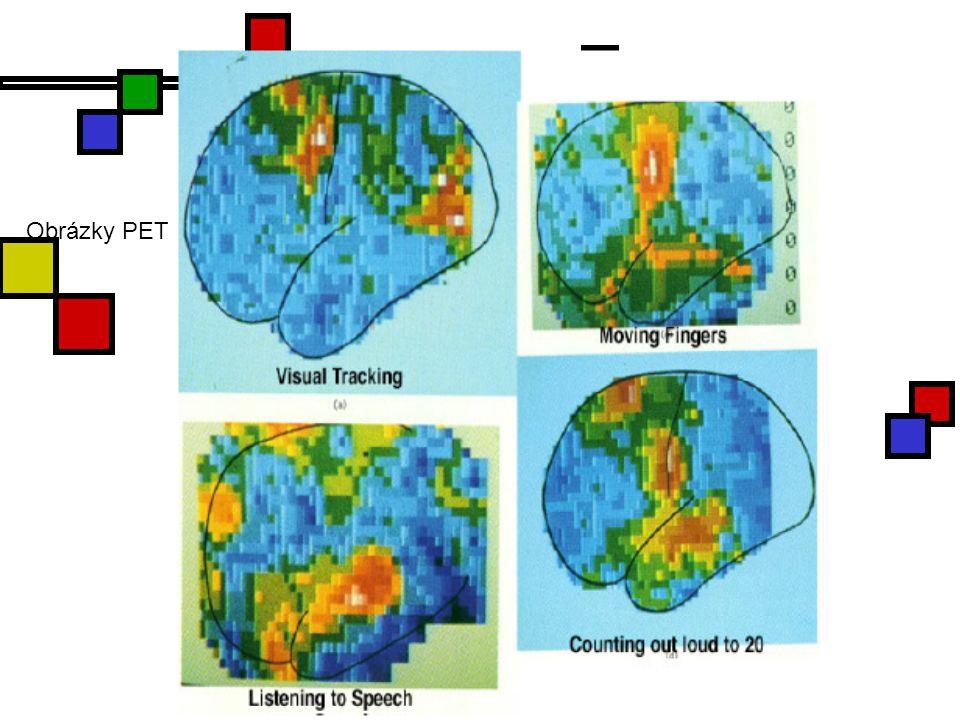 Alzheimerova nemoc Cerebrovaskulární a neuronální dysfunkce vedoucí k progresivní ztrátě kognitivních funkcí Tau protein a extracelulární amyloidové plaky, jejich základní součástí je peptid amyloid β (Aβ).