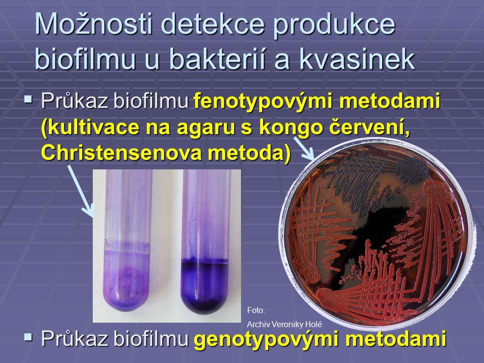 Možnosti detekce produkce biofilmu u bakterií a kvasinek  Průkaz biofilmu fenotypovými metodami (kultivace na agaru s kongo červení, Christensenova m