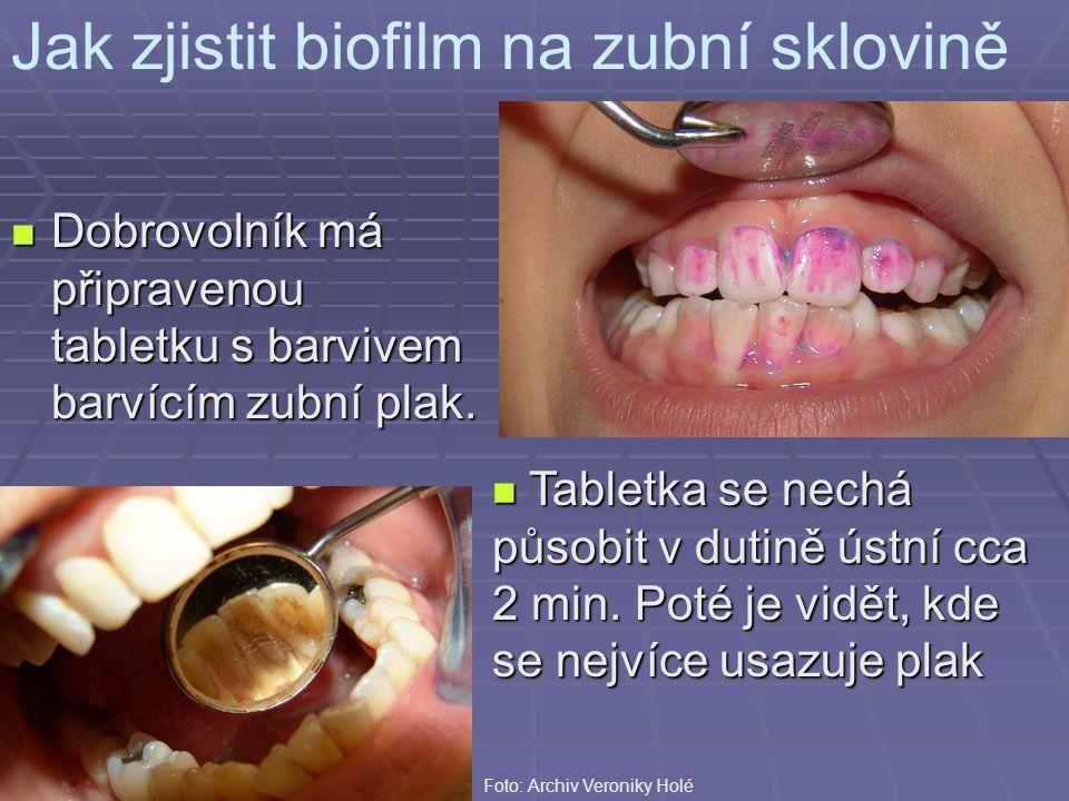 Jak zjistit biofilm na zubní sklovině Dobrovolník má připravenou tabletku s barvivem barvícím zubní plak. Dobrovolník má připravenou tabletku s barviv