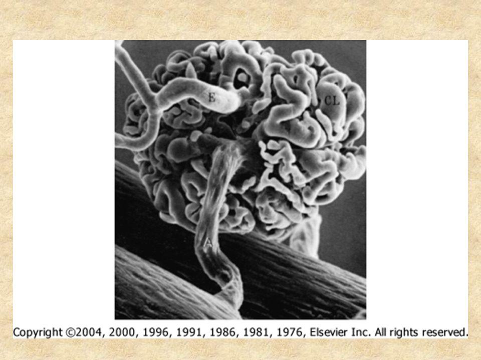 Muž, 21 let, potvrzení diagnózy: Glomerulární hematurie, erytrocytární válce Často proteinurie Někdy snížení funkce ledvin Někdy ↑ IgA v séru Renální biopsie – obvykle mesangioproliferativní GN.