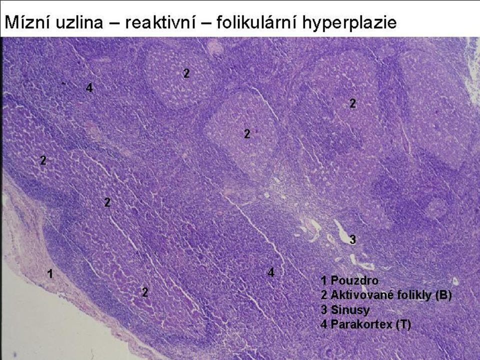 Non-Hodgkin ML B řady CLL-SCL: z naive B cells ~ malé lfc.