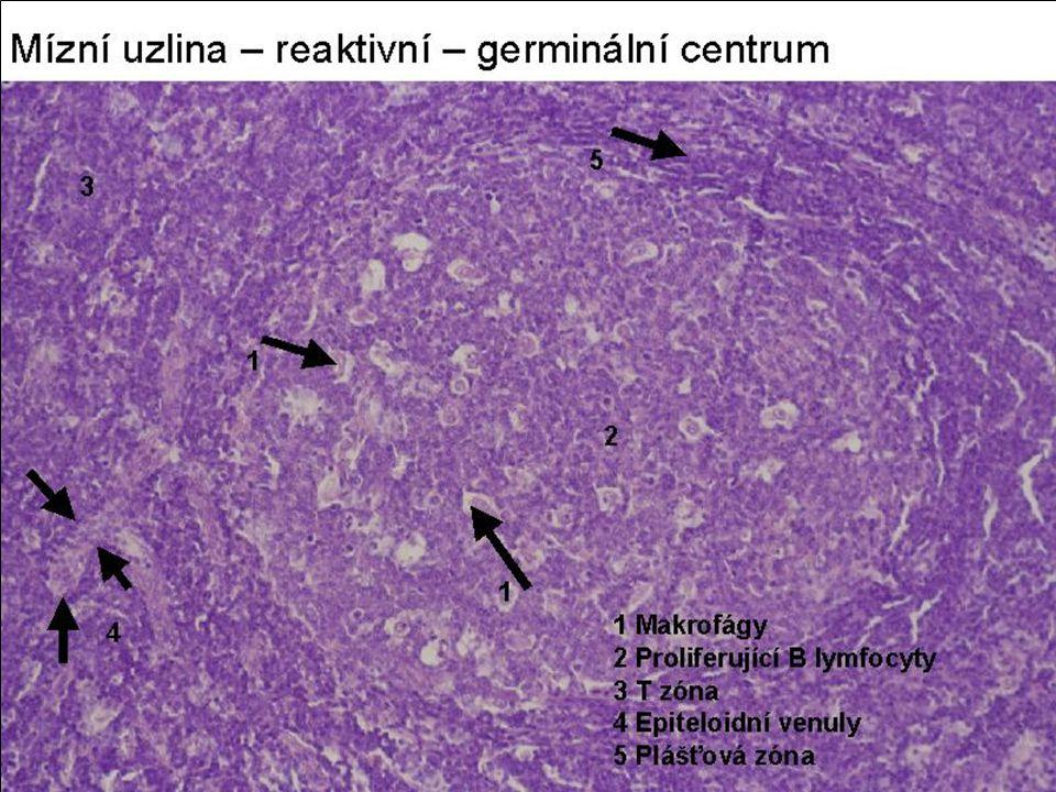 Non-Hodgkin ML B řady Folikulární MLL –skup B lymfomů z bb lymf foliklů ML z bb zárodečných center (skr 2.4): cc a cbl.